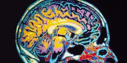 Diagnosing Alzheimer's With Brain Scans